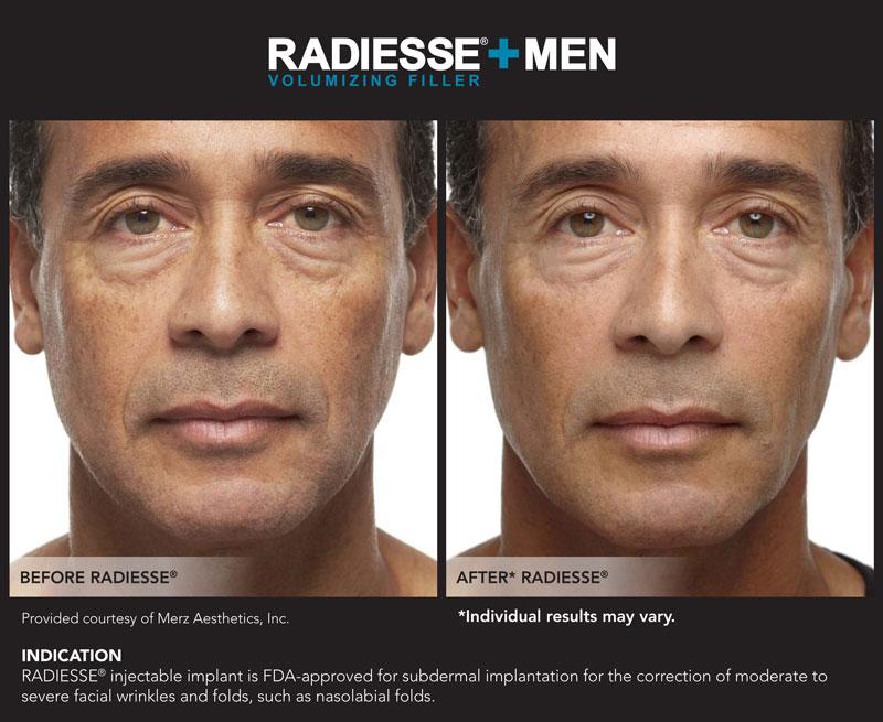 Blue MedCenter | RADIESSE® $600