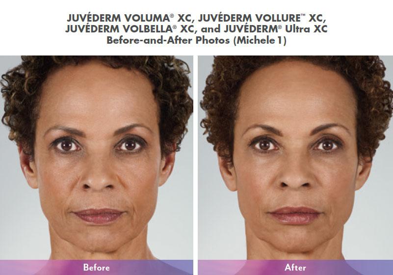 Blue MedCenter   Dermal Fillers and Volumizers